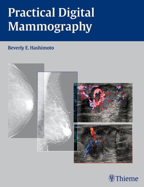 Practical Digital Mammography - Hashimoto, Beverly