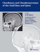 Chordomas and Chondrosarcomas of the Skull Base and Spine - Robert E. Ojemann Griff Harsh