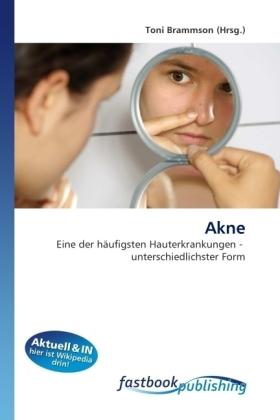 Akne - Eine der häufigsten Hauterkrankungen - unterschiedlichster Form - Brammson, Toni